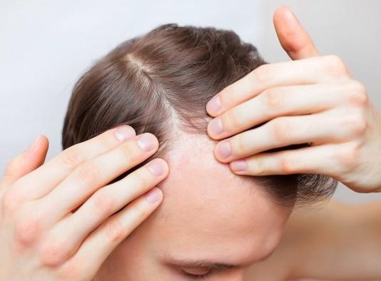 Tipos-de-alopecia-androgenetica-areata-difusa-cicatricial_thumbnail