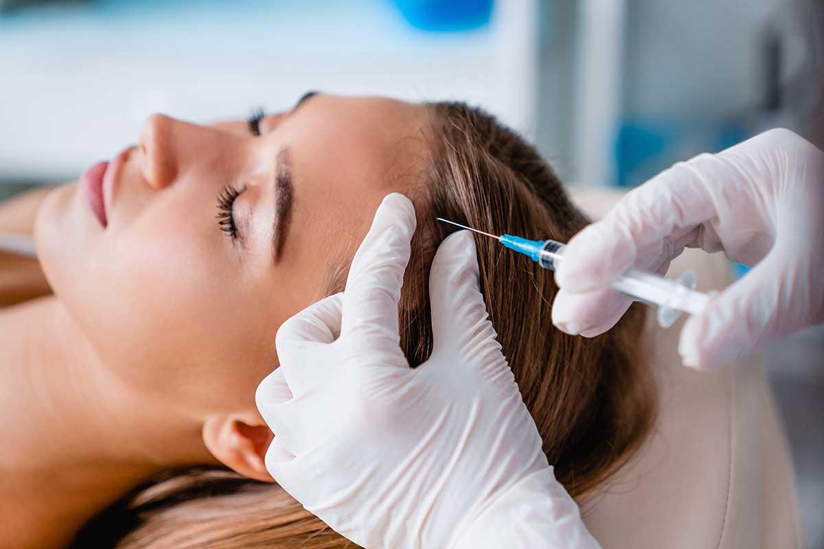 tratamientos-capilares-alopecia-mesoterapia-prp