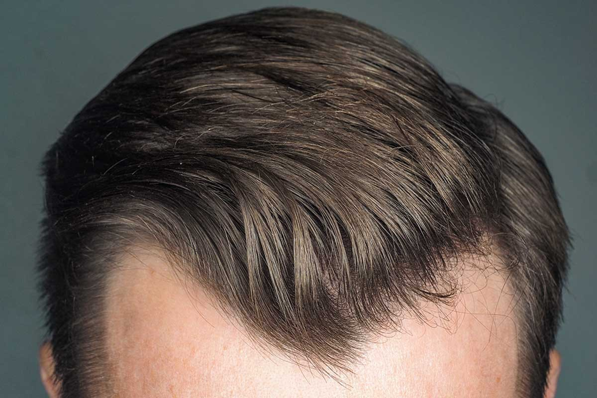 origen-alopecia-perdida-pelo