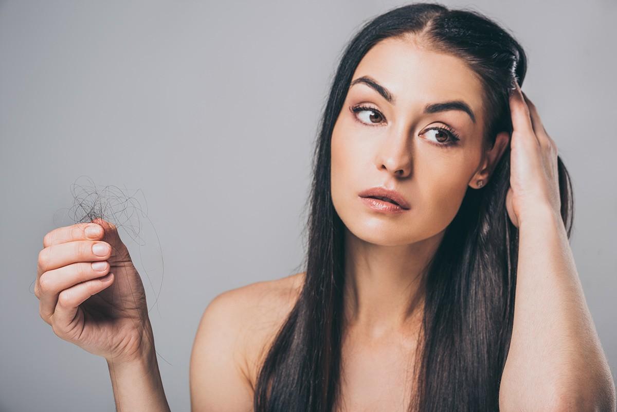 alopecia-mujeres-tipos-tratamientos